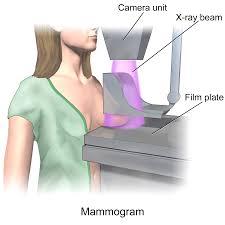 μαστογραφία σκίτσο