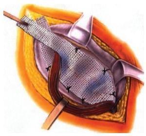 Lichtenstein-repair-under-local-anaesthetic